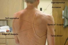 Assessments for every joint! Back, shoulder, elbow, hand, knee etc.... Repinned by SOS Inc. Resources @SOS Inc. Resources http://pinterest.com/sostherapy.