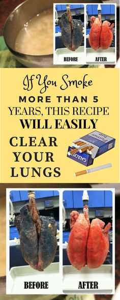 If You Smoke More Than 5 Years, This Recipe Will Easily Clear Your Lungs