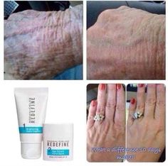 Skin care is not only for the face! Your hands can look younger too! Go to my website to learn more!