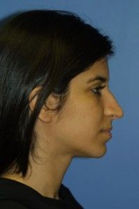 Welcome to Rhinoplasty Master your guide to Dr Philip J Millers Ethnic Rhinoplasty Welcome to Rhinoplasty Master your guide to Dr Philip J Millers pract Ethnic Rhino. Ethnic Rhinoplasty, Rhinoplasty Surgery, Nose Surgery, Rhinoplasty Before And After, Welcome, Lose Weight, People, York, Website
