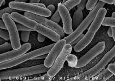The newest results from the Human Microbiome Project have revealed just how connected the microbes in our gut are to our overall health.You have about as many bacteria and other microbes living in your body as your own cells—and yet, we still don't … Best Toenail Fungus Treatment, Toenail Fungus Cure, Toenail Pain, Fungus Toenails, Human Microbiome Project, Fungal Nail Infection, Wordpress, Gut Microbiome, Gut Bacteria
