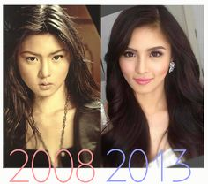 Kim Chiu Before and After Surgery Always interesting what you can find when you type in cosmetic surgery and other related terms