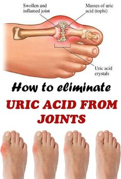 How to eliminate uric acid from joints
