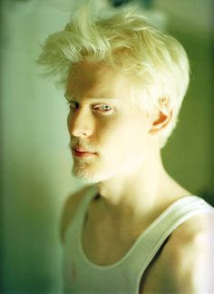 Stephen Thompson #albino #albinism