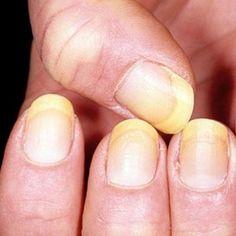 Remedii facute in casa pentru a combate unghiile ingalbenite (engleza)