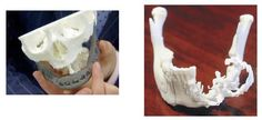 Two South African Cancer Patients Receive 3D Printed Titanium Jaw Implants http://3dprint.com/10210/3d-printed-jaw-south-africa/