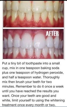 toothpaste, baking soda, hydrogen peroxide to whiten teeth! sounds awesome, but for some reason, if feel like i might poison myself haha by sally tb