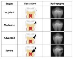 Dentaltown - The Four Stages of Tooth Decay are incipient, moderate, advanced, & severe.