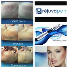 Minimise pores, reduce wrinkles, tighten skin, improve scars and stretch marks with Rejuvapen. Book your consult with our expert Dr Berik. Rejuvapen Acne scars Acne Treatment Acne Cure Pores Skin Tightening Wrinkles on face Nose Pores, Face Wrinkles, Minimize Pores, Moisturizer With Spf, Skin Care Remedies, How To Get Rid Of Acne, How To Treat Acne