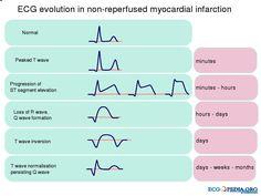 evolution of EKG
