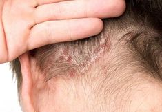 Psoriasis can be a debilitating condition. So, if you start noticing these visible symptoms of psoriasis, use this thorough list of safe natural treatments. Natural Cure For Psoriasis, Severe Psoriasis, What Is Psoriasis, Psoriasis Skin, Psoriasis Remedies, Body Treatments, Natural Treatments, Natural Remedies, Early Education