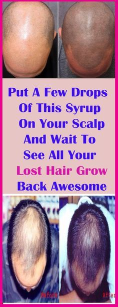 Put A Few Drops Of This Syrup On Your Scalp And Wait To See All Your Lost Hair Grow Back…Awesome#health #beauty #getrid #howto #exercises #workout #skincare #skintag  #bellyfat #homeremdieds #herbal