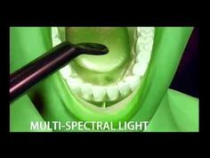 Patient Educational Video about Oral Cancer Screening