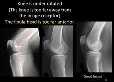 Radiology Schools, Radiology Student, Radiologic Technology, Leg Anatomy, Child Life Specialist, Rad Tech, Medical Imaging, Medical Field, Clinic