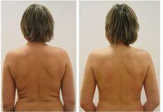 Жировые складки на спине могут расстроить как женщин, так и представителей сильного пола. Своим неэстетичным видом они портят силуэт человека и сигнализируют о неправильном питании – жирной и калорийной пищей – и о не вполне здоровом образе...