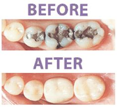 For years, the silver-mercury amalgam was the standard filling material used in dental practices, and many practices still use it. While they are a reasonable restoration, amalgams have certain shortcomings. Metal does not bond well to teeth, so decay can and does eventually leak into the tooth. But the biggest reason many of our patients are choosing the white bonded fillings has to do with the way they look. Many people just don't want an ugly black plug in their teeth.