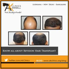 Increasing demand of Revision Hair Transplant. Hair Transplant has come a long way in establishing itself as a technique of Hair Restoration