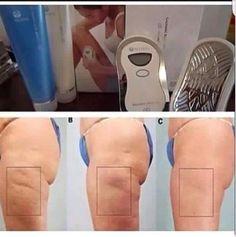 Las tecnologías de Nu Skin contienen el desarrollo de la ciencia Ageloc, lo cual cambiará tu vida!! Resultados desde la primera sesión, distribuidor oficial contacto Mail sanmarcelest@hotmail.com www.bellezacelestial.nuskinops.com