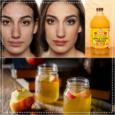 Before And After Pictures Of A Woman Who Used Apple Cider Vinegar To Remove Her Acne   Healthy Living 93