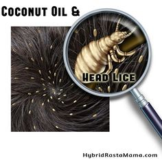 Coconut Oil and Head Lice by Hybrid Rasta Mama