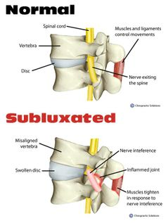When spinal bones (vertebrae) move out of normal alignment, they affect your nerve flow. This nerve interference is called subluxation. Chiropractors find subluxations and remove them via a spinal adjustment. No subluxations = optimally functioning nervous system = greater quality of life. See Dr. Blake to have your spine checked! #bkbchiropractic