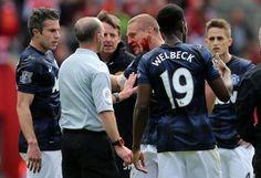 Vidic takes an elbow to the face. No free kick given....smh