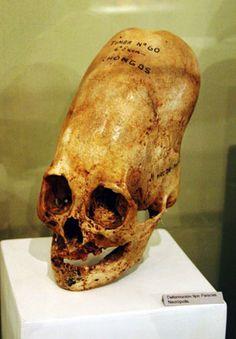 46 Elongated Human Skulls ideas | ancient aliens, ancient mysteries,  archaeology