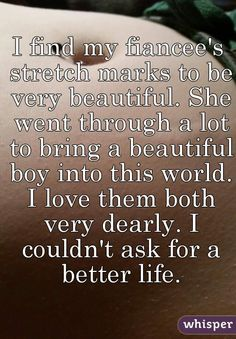 I find my fiancee's stretch marks to be very beautiful. She went through a lot to bring a beautiful boy into this world. I love them both very dearly. I couldn't ask for a better life.