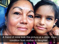 Mother And Daughter With Heterochromia - So cool!  I love stuff like this!