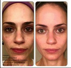 Megan, a consultant, used Soothe and Unblemish for one month