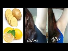 How To Lighten Underarms With Potato and Lemon Naturally - Best Underarm Whitening Baking Soda Scrub, Baking Soda For Hair, Baking Soda Face, Baking Soda And Lemon, How To Lighten Underarms, Lighten Skin, Dark Spots Under Armpits, Dark Armpits, Armpit Whitening