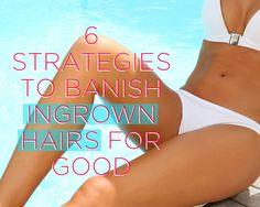 6 Strategies to Banish Ingrown Hairs for Good