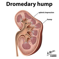 Dromedary humps are prominent focal bulges on the lateral border of the left kidney. They are normal variants of the renal contour, caused by the splenic impression onto the superolateral left kidney. Dromedary humps are important because they m. Kidney Mass, Radiologic Technology, Medical Mnemonics, Medical Anatomy, Kidney Health, Ultrasound, Illustration, Naturopathy, Human Anatomy