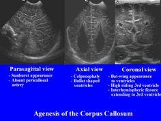 Ultrasound Of Callosal Agenesis Ultrasound School, Ultrasound Sonography, Ultrasound Technician, Corpus Callosum, Sounds Good, Pediatrics, Brain, Career, Science