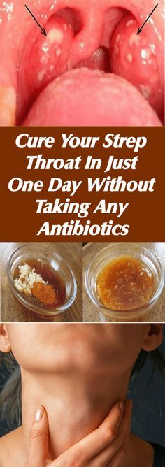 Cure Your Strep Throat In Just One Day Without Taking Any Antibiotics#health #beauty #getrid #howto #exercises #workout #skincare #skintag #bellyfat #homeremdieds #herbal