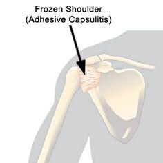 Treatments of Frozen Shoulder