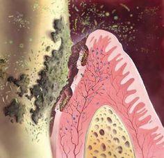 periodontal health bacteria - Google Search