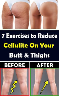 7 Exercises to Reduce Cellulite On Your Butt & Thighs Thigh Cellulite, Cellulite Wrap, What Is Cellulite, Cellulite Exercises, Cellulite Remedies, Thigh Exercises, How To Reduce Cellulite, Cellulite Workout, Exercise To Reduce Thighs