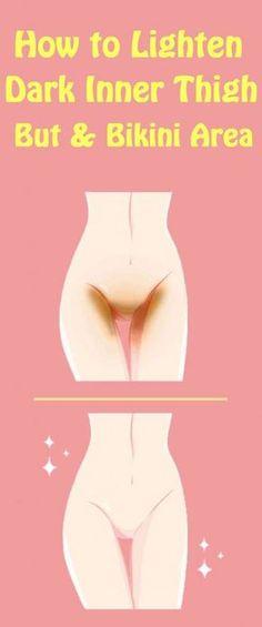 How to lighten Dark Inner Thigh, But and Bikini Area Whitening Bikini Area, Dark Bikini Area, Pimples Remedies, Body Hacks, Body Treatments, Health And Beauty Tips, Insta Photo, Dark Skin, Light Skin