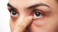 #Cómo evitar las recurrentes alergias oculares - Infobae.com: Infobae.com Cómo evitar las recurrentes alergias oculares Infobae.com Los…