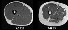 Researchers identify precise cause of muscle weakness and loss due to aging.