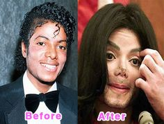 Image detail for -Celebrity Plastic Surgery Disasters. Before And After (16 pics) Michael Jackson