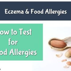 12 Common Foods That Could Be Triggering Your Eczema - EczemaMom Skin Allergy Test, Allergy Testing, Eczema Causes, Contact Dermatitis, Digestion Process, Milk And Eggs, Allergy Symptoms, Blood Test, Food Allergies
