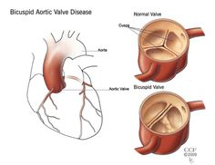 Another disease added to my long list of life-altering diseases. Bicuspid Aortic Valve Disease.