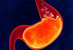 Rimedi naturali per combattere il problema del reflusso gastro-esofageo, patologia conclamata negli ultimi anni. Reflusso come patologia,Reflusso fisilogico