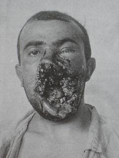 gueule cassée première guerre mondiale | 1914-1918: les gueules cassées | Claire GRUBE : blog histoire