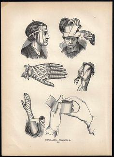 Antique Medical Chart Bandages - 1901 Book Plate Print - Wrapped Head Arm Leg Foot Hand Finger - Fun for Halloween. $9.00, via Etsy.