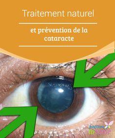 Traitement #naturel et prévention de la cataracte Connaissez-vous la #maladie appelée #cataracte ? Il vaut mieux la prévenir ! Nous vous proposons cependant des #remèdes naturels qui peuvent vous aider.