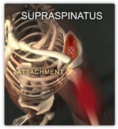 Supraspinatus muscle one of the rotator cuff muscles that is missed by a lot of LMTs when the client complain about shoulder px.