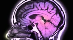 Schizophrenia has clear genetic ties, new study finds